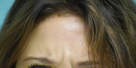 Botox - Liberati delle rughe sul viso