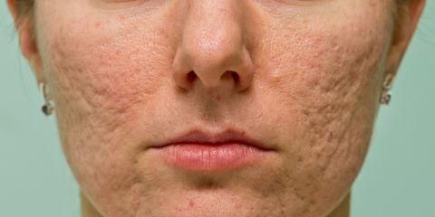 Medicazione delle cicatrici causate da acne