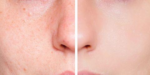 Ringiovanimento e miglioramento della qualità della pelle e riduzione dei pori