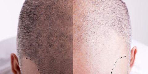 Miglioramento del cuoio capelluto, riduzione della perdita dei capelli