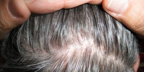 Malattie della perdita dei capelli e del cuoio capelluto